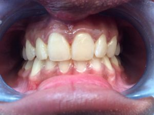 Chip repaired with a tooth coloured composite filling material.